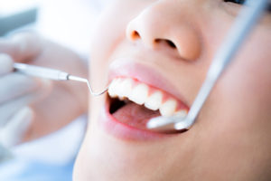 What To Do in Different Dental Emergencies